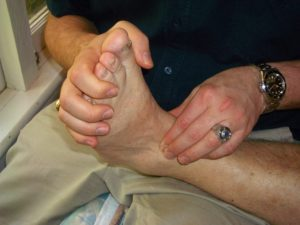 Ankle Pain Treatment With Bowen Therapy At Setter's Health Centre.