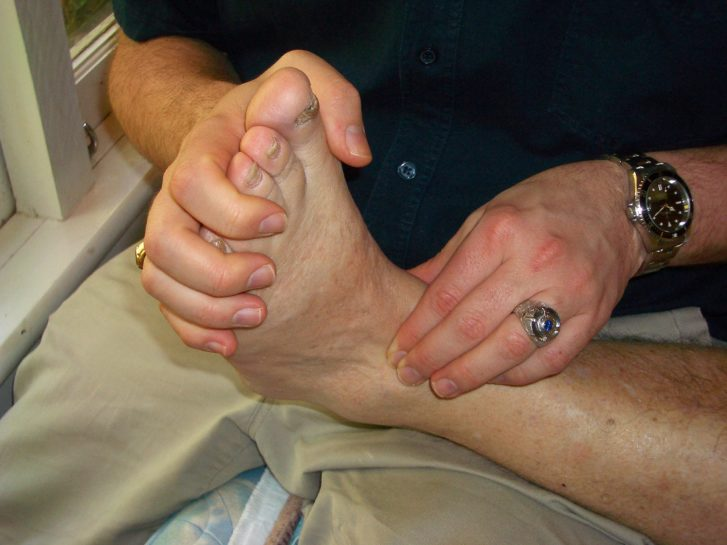 What is an Sprained Ankle? & What can Bowen Therapy do?